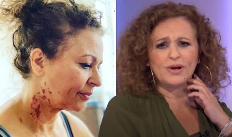 Nadia Sawalha shares recovery update as she returns to Loose Women after 'really bad' burn