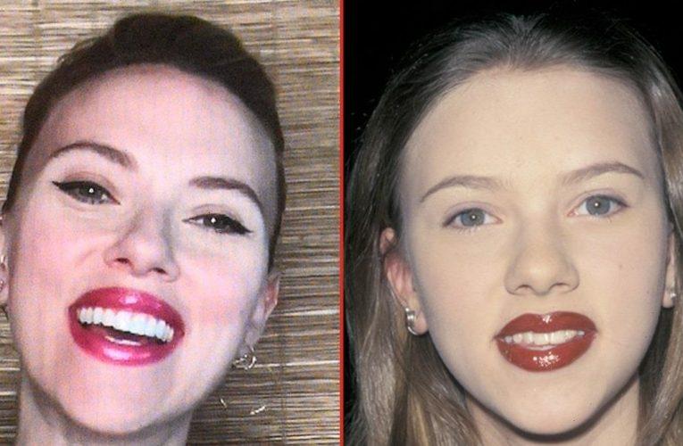 Scarlett Johansson — Good Genes or Good Docs?!