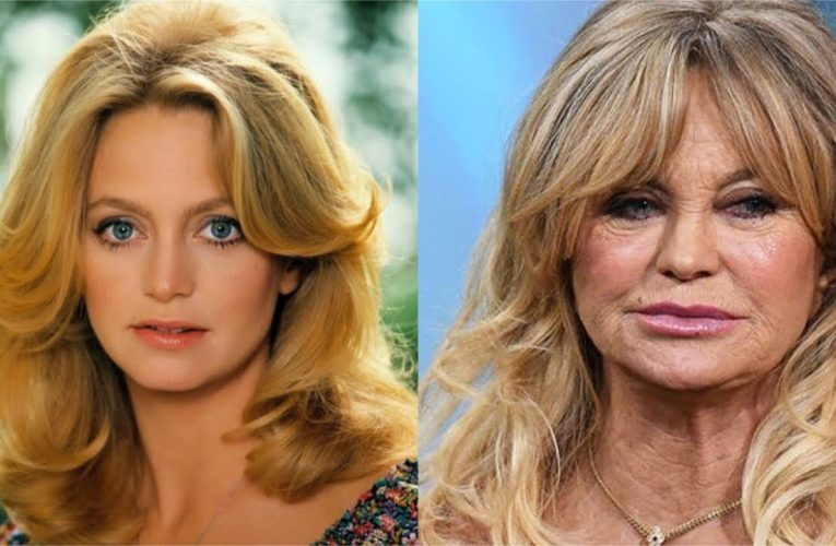 Celebrities who aged badly