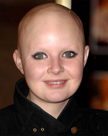 Celebrities with alopecia
