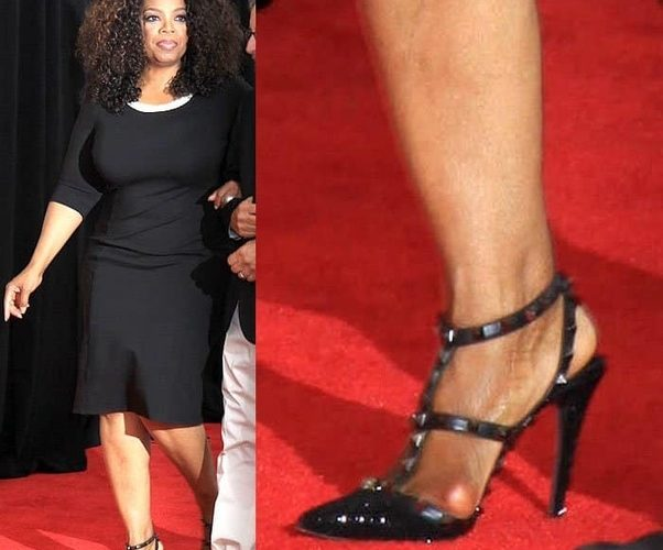 Celebrities with bunions