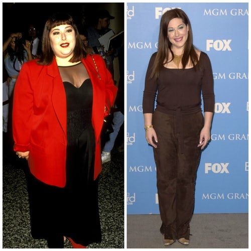 Celebrities Who Had Weight-Loss Surgery, And Were Totally Open …
