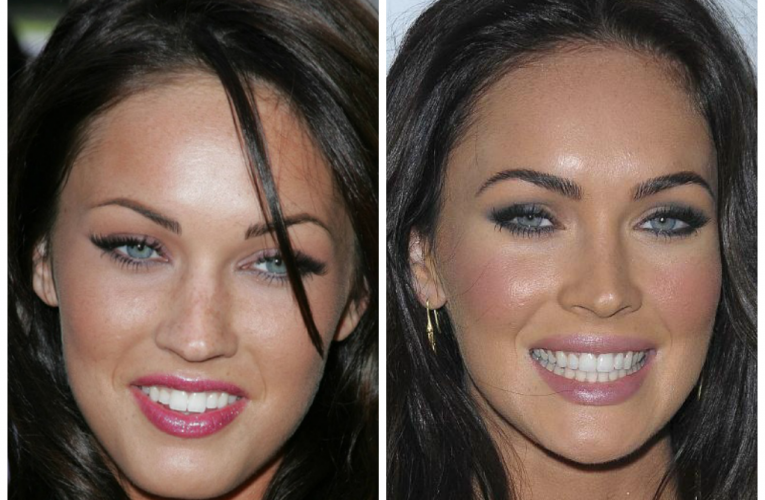 Here are 10 celebrities you didnt know got veneers, or …